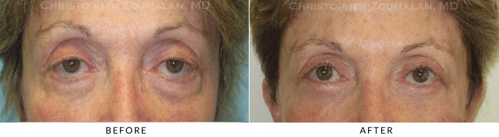 Revisional Eyelid Surgery Before & After Photo -  - Patient 14