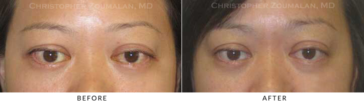 Revisional Eyelid Surgery Before & After Photo -  - Patient 15