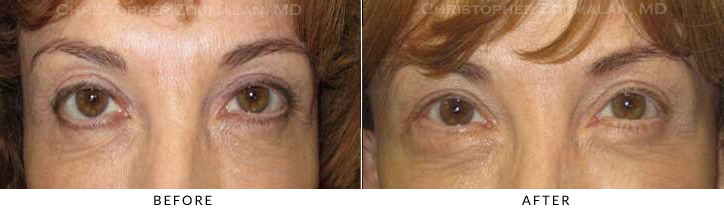 Revisional Eyelid Surgery Before & After Photo -  - Patient 7