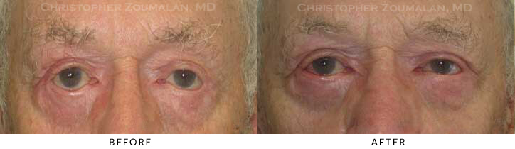 Revisional Eyelid Surgery Before & After Photo -  - Patient 10