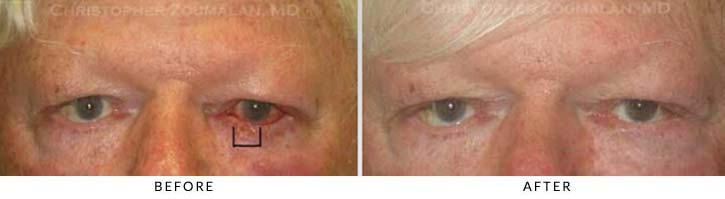 Eyelid Skin Cancer Excision Before & After Photo - Patient Seeing Straight - Patient 1A