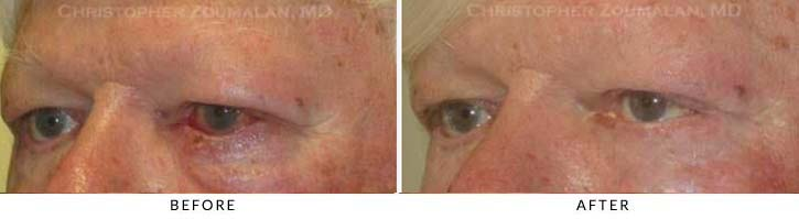 Eyelid Skin Cancer Excision Before & After Photo - Patient Seeing Side - Patient 1B