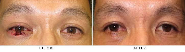 Eyelid Trauma Terminology Pic