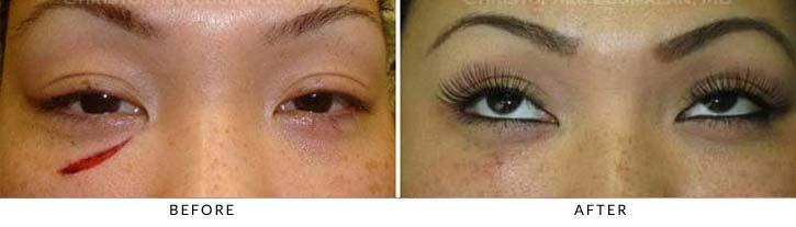 Eyelid Trauma Terminology