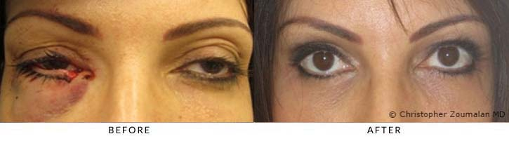 Repair of right lower eyelid and canalicular (tear duct system) laceration, Photo was taken 6 months after injury and repair - female patient before and after picture