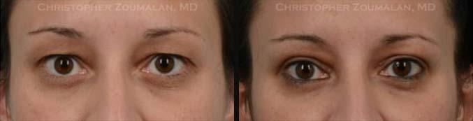 Upper Eyelid Blepharoplasty Front Side