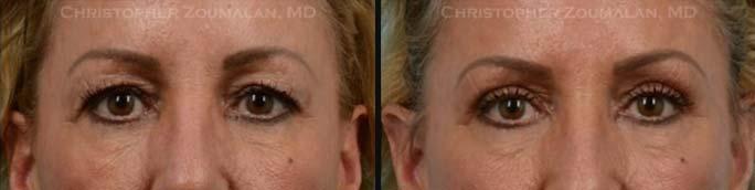 Upper Eyelid Blepharoplasty Front