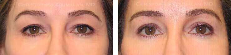 A Natural Looking Blepharoplasty TM technique was used to carefully remove some the patient's excess skin from her upper lids - female patient before and after picture