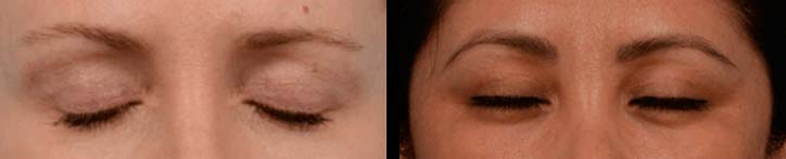 An upper lid blepharoplasty is performed with the utmost precision and care to ensure minimal scarring - female patient before and after picture