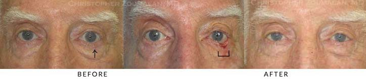 Eyelid Skin Cancer Excision Before & After Photo - Patient Seeing Straight - Patient 10