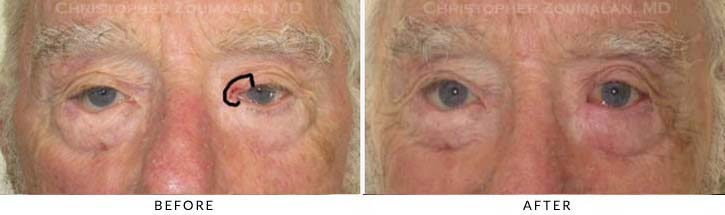 Eyelid Skin Cancer Excision Before & After Photo - Patient Seeing Straight - Patient 11
