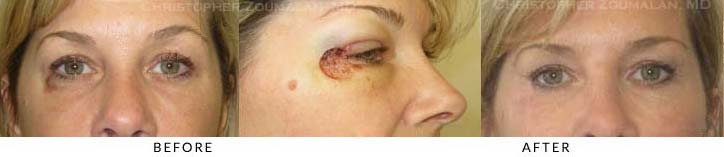 Eyelid Skin Cancer Excision Before & After Photo -  - Patient 12