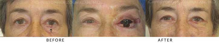 Eyelid Skin Cancer Excision Before & After Photo - Patient Seeing Straight - Patient 13
