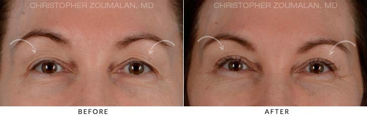 Upper Lid Blepharoplasty Before & After Photo - Patient Seeing Straight - Patient 1A
