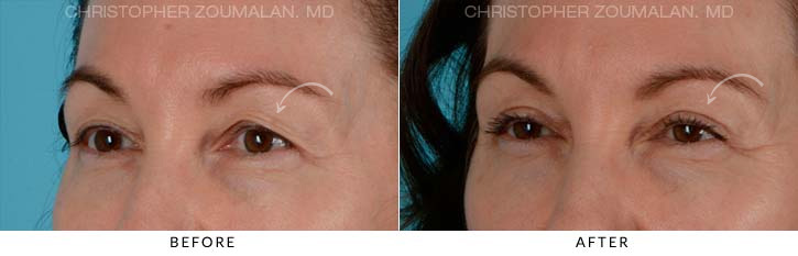 Upper Lid Blepharoplasty Before & After Photo - Patient Seeing side - Patient 1B