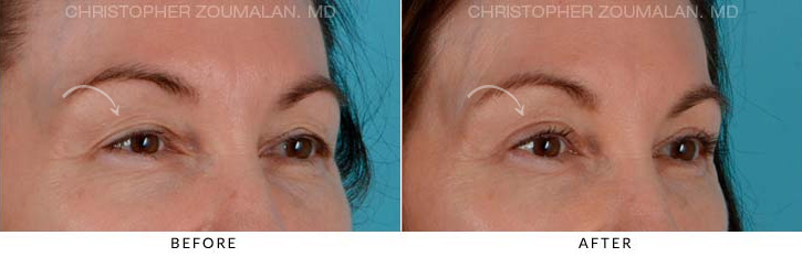 Upper Lid Blepharoplasty Before & After Photo - Patient Seeing side - Patient 1C