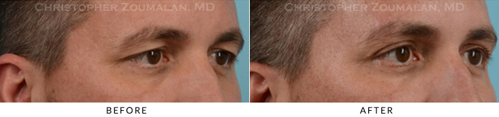 Upper Lid Blepharoplasty Before & After Photo -  - Patient 19A