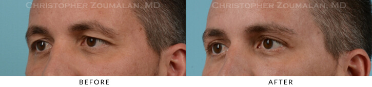 Upper Lid Blepharoplasty Before & After Photo - Patient Seeing Side - Patient 19B