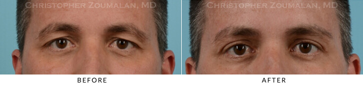 Upper Lid Blepharoplasty Before & After Photo - Patient Seeing Straight - Patient 19C