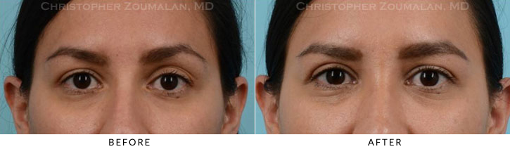Upper Lid Blepharoplasty Before & After Photo -  - Patient 20