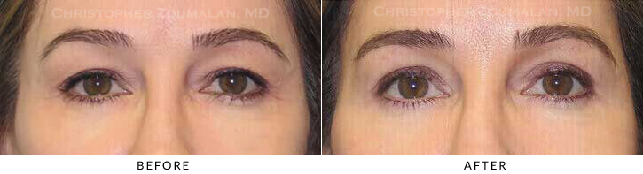 Upper Lid Blepharoplasty Before & After Photo - Patient Seeing Straight - Patient 21A