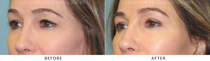 Upper Lid Blepharoplasty Before & After Photo -  - Patient 21B