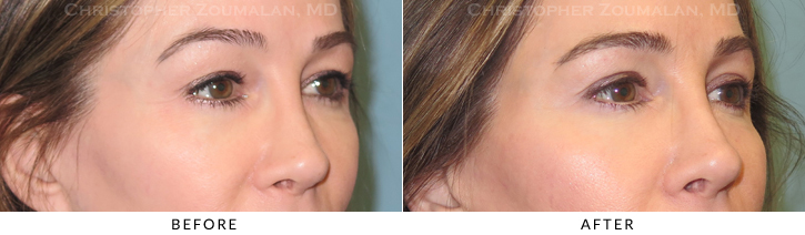 Upper Lid Blepharoplasty Before & After Photo - Patient Seeing Side - Patient 21C