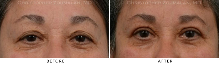 Upper Lid Blepharoplasty Before & After Photo -  - Patient 22
