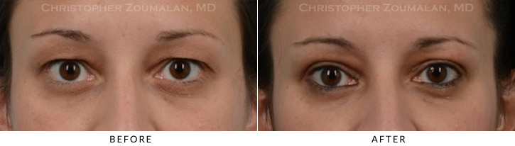 Upper Lid Blepharoplasty Before & After Photo -  - Patient 23