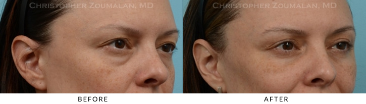 Upper Lid Blepharoplasty Before & After Photo -  - Patient 24A