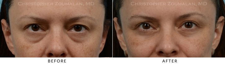 Upper Lid Blepharoplasty Before & After Photo -  - Patient 24B