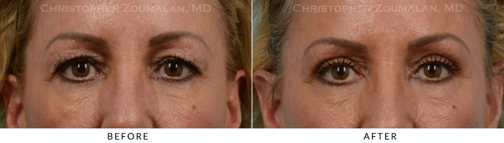 Upper Lid Blepharoplasty Before & After Photo -  - Patient 25
