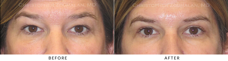 Upper Lid Blepharoplasty Before & After Photo -  - Patient 26