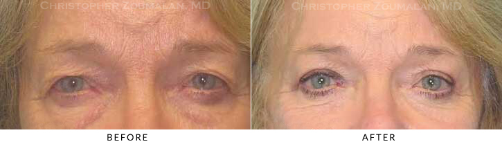 Upper Lid Blepharoplasty Before & After Photo -  - Patient 27
