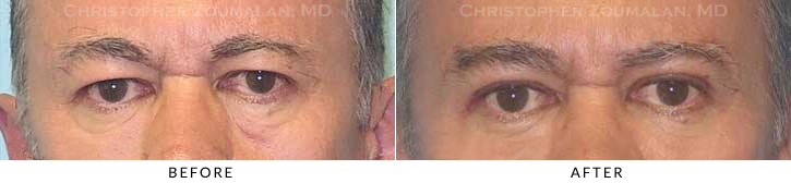 Upper Lid Blepharoplasty Before & After Photo - Patient Seeing Straight - Patient 28A