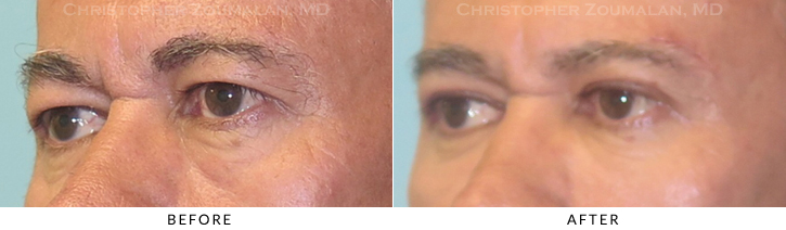 Upper Lid Blepharoplasty Before & After Photo -  - Patient 28C