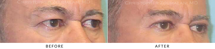 Upper Lid Blepharoplasty Before & After Photo - Patient Seeing Side - Patient 28B