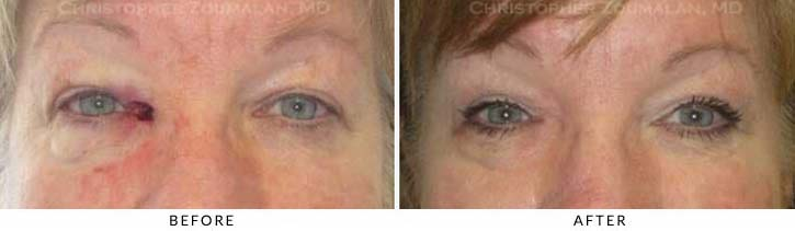 Eyelid Skin Cancer Excision Before & After Photo - Patient Seeing Straight - Patient 2