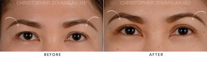 Upper Lid Blepharoplasty Before & After Photo - Patient Seeing Straight - Patient 2