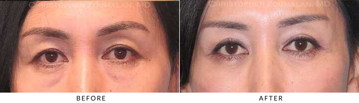 Upper Lid Blepharoplasty Before & After Photo - Patient Seeing Straight - Patient 29A