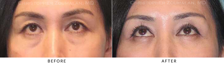 Upper Lid Blepharoplasty Before & After Photo - Patient Seeing Up - Patient 29C