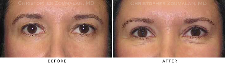 Upper Lid Blepharoplasty Before & After Photo -  - Patient 30