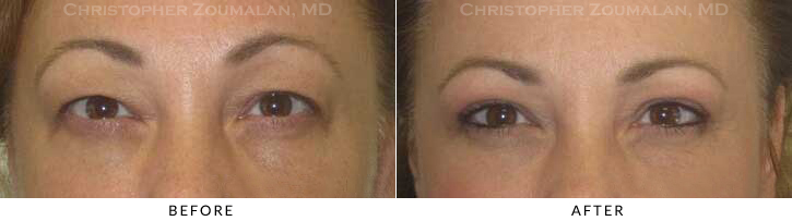Upper Lid Blepharoplasty Before & After Photo -  - Patient 37