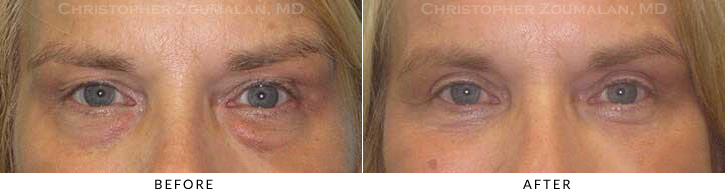 Upper Lid Blepharoplasty Before & After Photo - Patient Seeing Straight - Patient 38A
