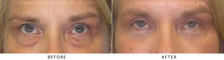 Upper Lid Blepharoplasty Before & After Photo - Patient Seeing Up - Patient 38B