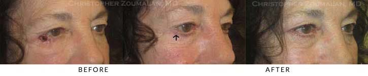 Eyelid Skin Cancer Excision Before & After Photo - Patient Seeing Side - Patient 3