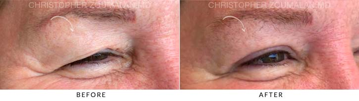 Upper Lid Blepharoplasty Before & After Photo - Patient Seeing Side - Patient 3