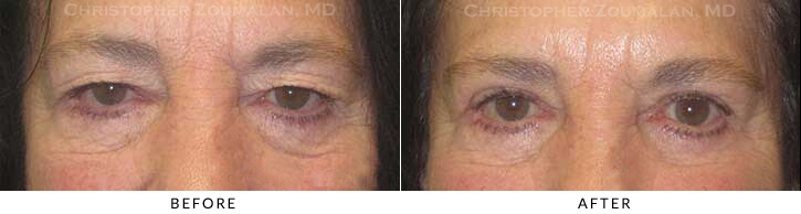 Upper Lid Blepharoplasty Before & After Photo -  - Patient 39