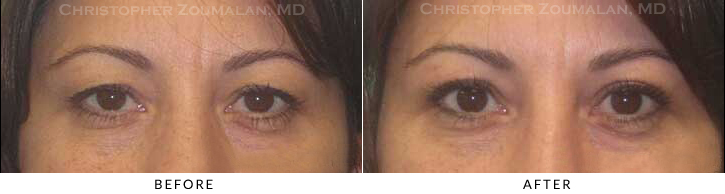 Upper Lid Blepharoplasty Before & After Photo -  - Patient 40