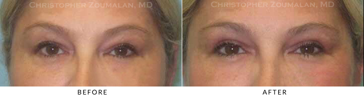 Upper Lid Blepharoplasty Before & After Photo - Patient Seeing Straight - Patient 41A